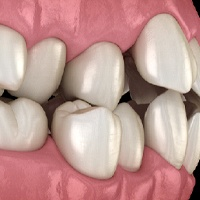 Digital image of crowded teeth