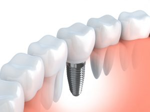 Dental implants in Jacksonville fill smile gaps.