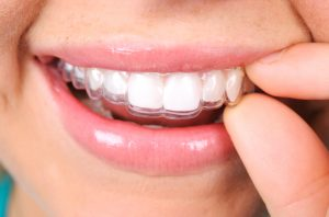 Discuss Invisalign treatment with your dentist in Jacksonville.