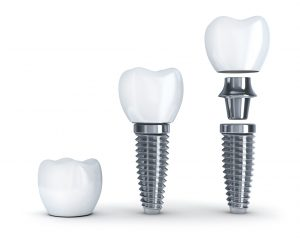 Dr. Young places dental implant restorations in Jacksonville.