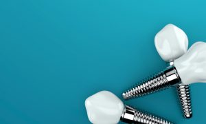 Curious about what dental implants in Jacksonville are made of? Find out in this post from Dr. Larry Young.