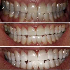 before and after picture teeth whitening