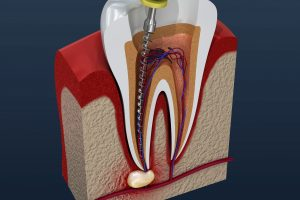 Image of a root canal after preventive dentistry